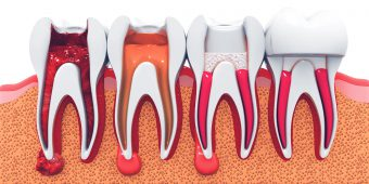 certified endodontist